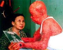 Ancien-militaire-vietnamien-tenant-une-photo-de-lui-même-avant-sa-contamination-par-lAgent-Orange