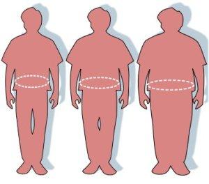 376px_Obesity_waist_circumference