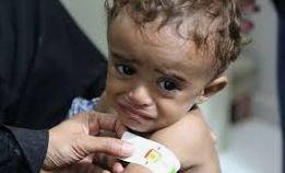 yemen-child-b